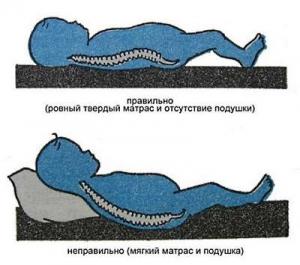 Влияние мягкости матраса на позвоночник новорожденного